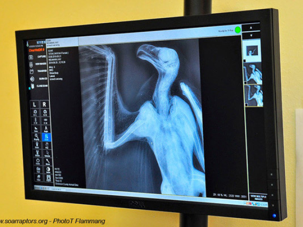 This x-ray was taken by Dr. Dirks immediately before surgery on 28 June 2014.